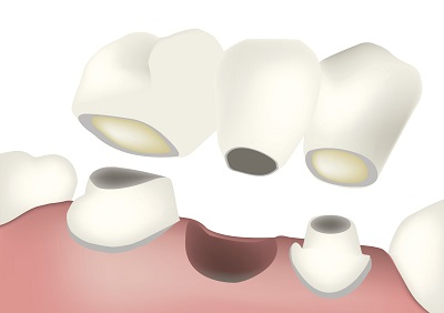 Diagram of a dental bridge Phillip Roe DDS, MS - Fixed Prosthodontics & Implant Surgery in Edmonds, WA