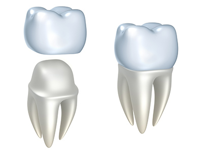 Dental Crowns by dentist in Edmonds, WA.