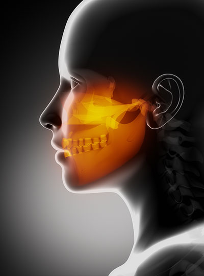 Sinus lift at Phillip Roe DDS, MS - Fixed Prosthodontics & Implant Surgery in Edmonds, WA