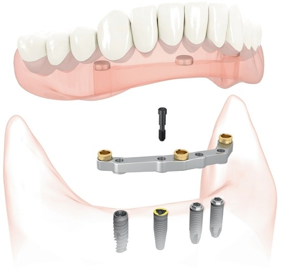 Implant-supported overdenture at Phillip Roe DDS, MS - Fixed Prosthodontics & Implant Surgery.